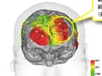 トッパン・フォームズ、紙媒体の情報理解力を脳科学実験で確認